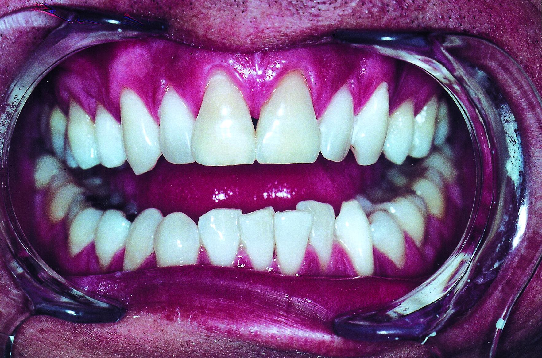 El problema de la sensibilidad dental - Blog ICOEV 2369c2d54b70