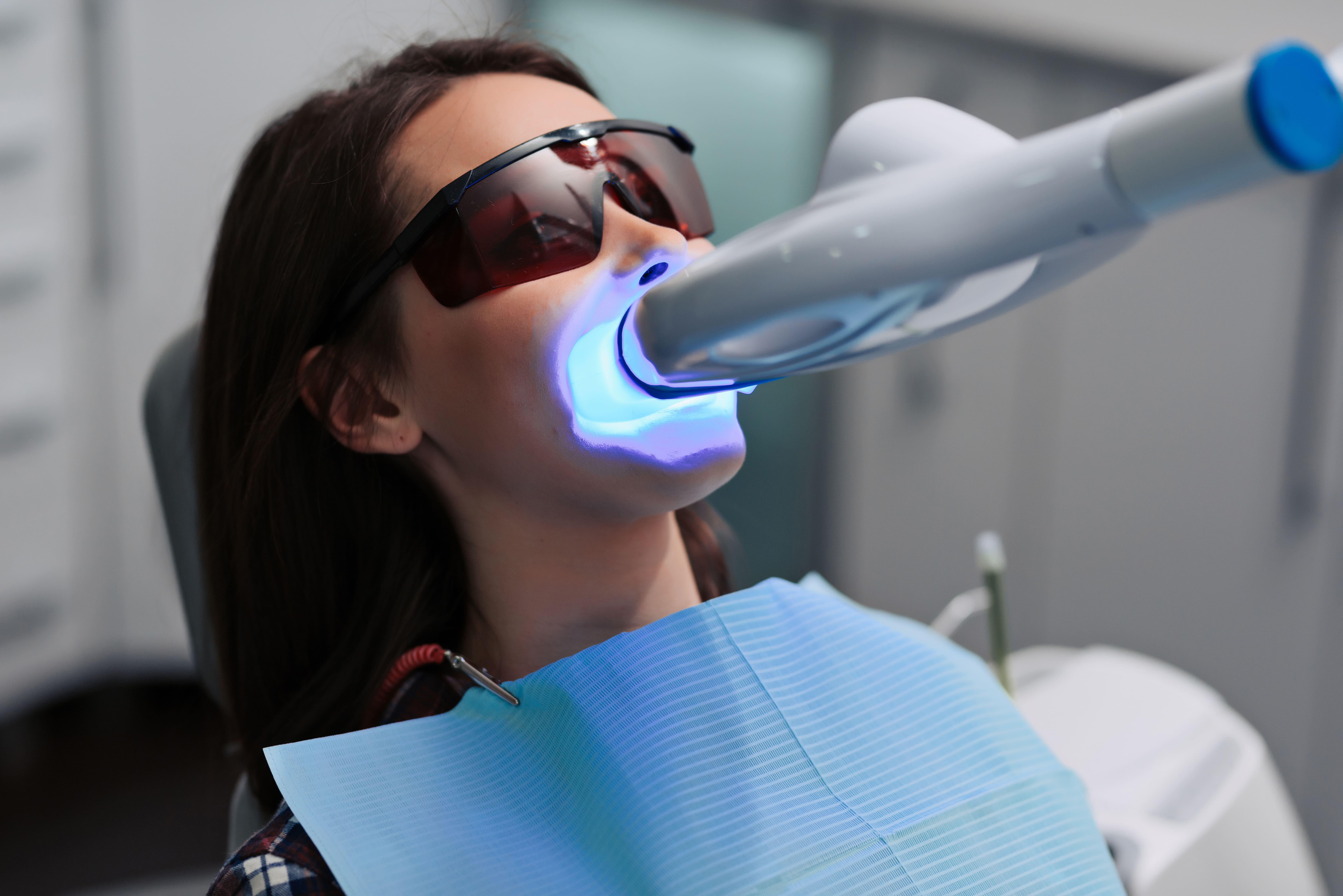 peligros blanqueamiento dental. Icoev