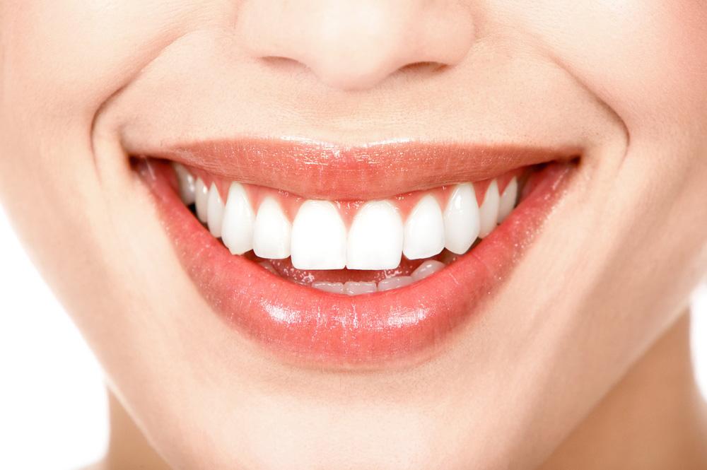 Resultado de imagen de blanqueamiento dental
