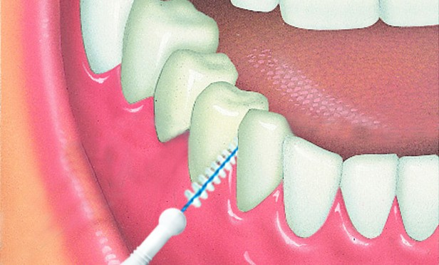 Travler_In_Teeth_copy-616x372