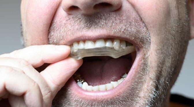 bruxismo. Colegio Oficial de Odontólogos y Estomatólogos de Valencia